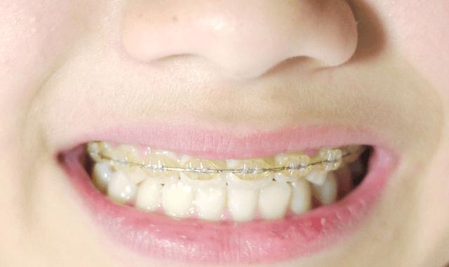 矯正歯科のホームページ制作で注意すべきこととは