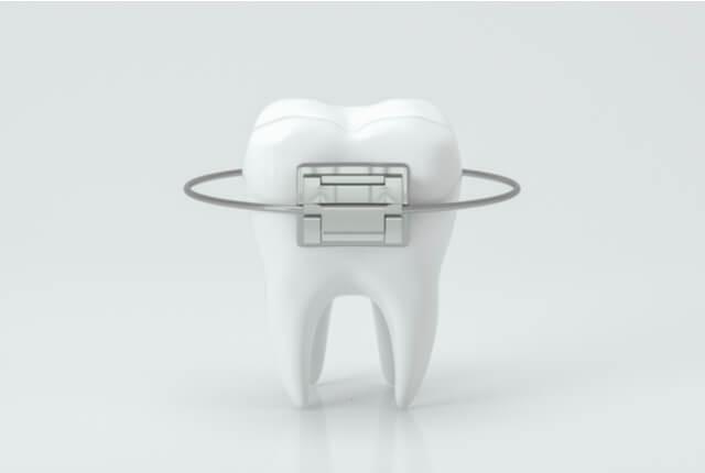 矯正歯科におすすめの差別化要素